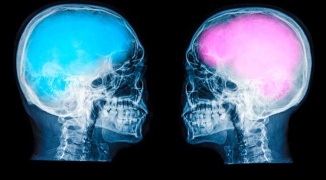 'Erkek beyni kutucuklardan kadın beyni alanlardan oluşuyor'