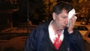 Gazeteci Yavuz Selim Demirağ'a saldırı...