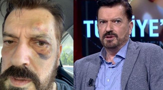 SONAR anketin sahibi Hakan Bayrakçı'yı kim dövdü? İma ettiği isim...