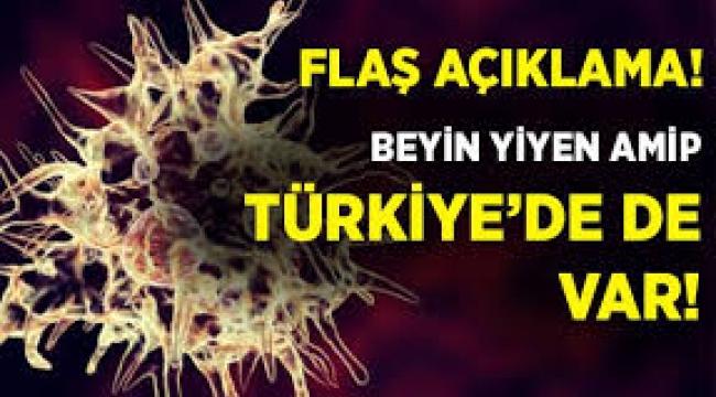 ABD'de görülen 'beyin yiyen amip' Türkiye'de de var