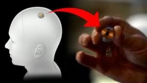 Elon Musk, 'beyin kontrol cihazını' tanıttı