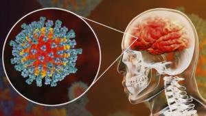 Covid-19 geçiren bazı beyinlerin 10 yıla kadar yaşlanabildiği, bazılarının da IQ seviyelerinin düştüğü anlaşılmış