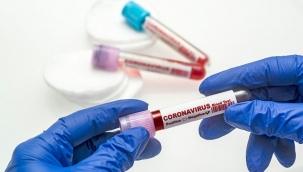 Türkiye'de Koronavirüs | 183 kişi daha hayatını kaybetti, 21 bin 692 yeni vaka tespit edildi