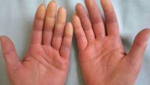 'Raynoud Sendromu' enfeksiyona neden olabilir
