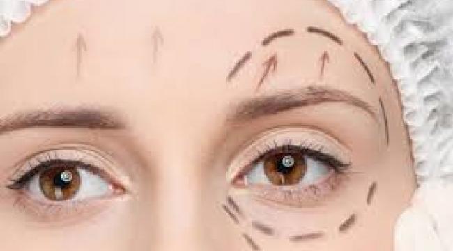 Yorgun ve Yaşlı İfadenizden Göz Kapağı Estetiği ile Kurtulabilirsiniz...