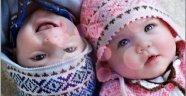 Hamilelik Belirtilerine Göre Bebeğin Cinsiyeti Tahmini