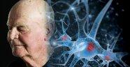 Bilim insanları, beynin nasıl 10 yıl gençleşebileceğini açıkladı